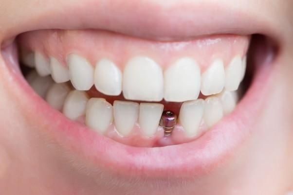 IAPOS incorporó la cobertura de implantes dentales a sus afiliados